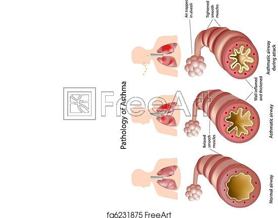 Free art print of Anatomy of Asthma. Pathology of asthma with and ...